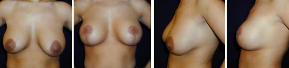 Die Erhöhung der Brust beim Mädchen 9 Jahre