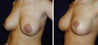 Die Brust fing weniger an, auf 6 Wochen der Schwangerschaft weh zu tun