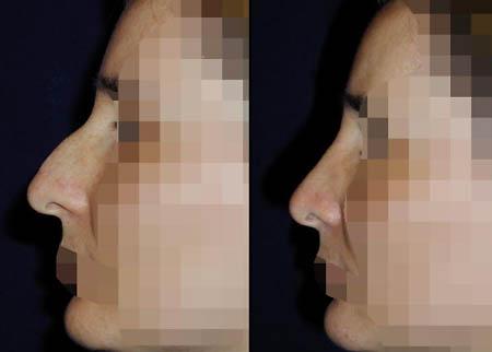 Wer hatte eine Operation nach der Abtragung und der Wiederherstellung der Brust