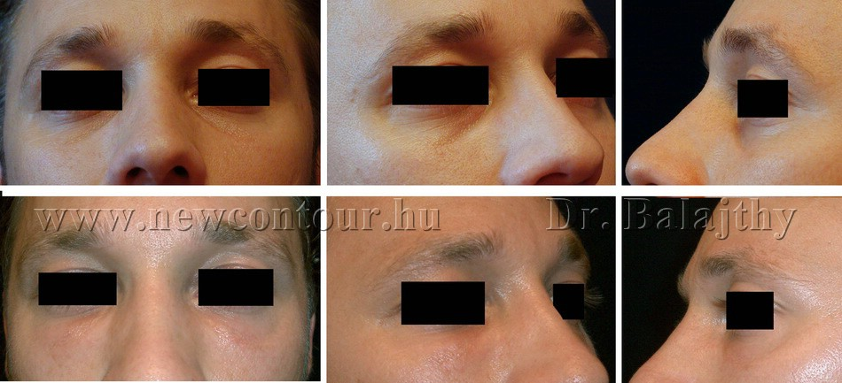 Nyak vékonyítása: felesleges zsír és bőrréteg eltávolítás