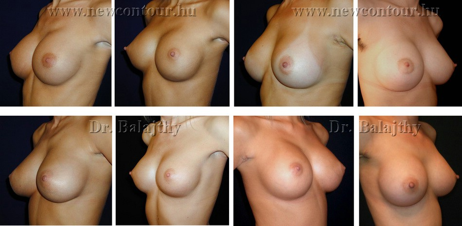 breast implants shape augmentation nipple