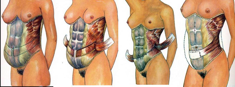 a has plasztikai sebészete a fogyás előtt és után